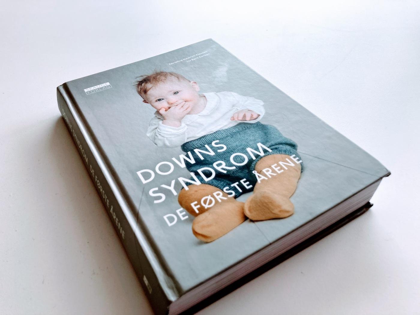 Bilde av boken Downs syndrom de første årene